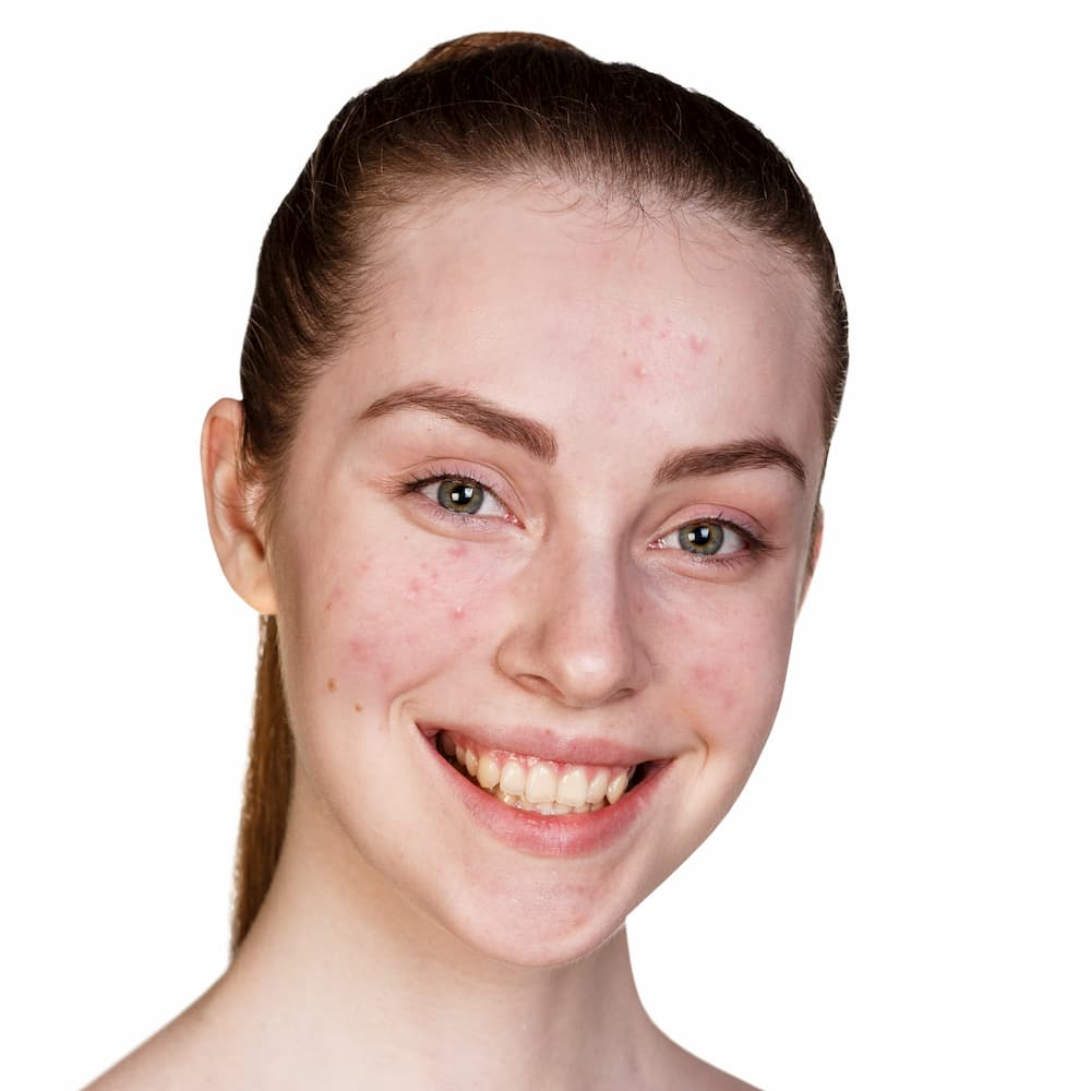 Remove blemishes from face, face tool, smiling girl with blemishes